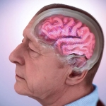 alzheimers-disease-fact-sheet