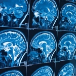 what-causes-frontotemporal-disorders